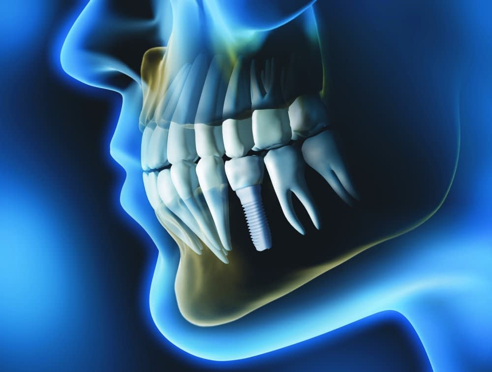 Zusa Mono Full Implant by Zsystems