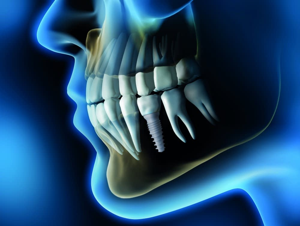Zusa Tapered Full Implant by Zsystems