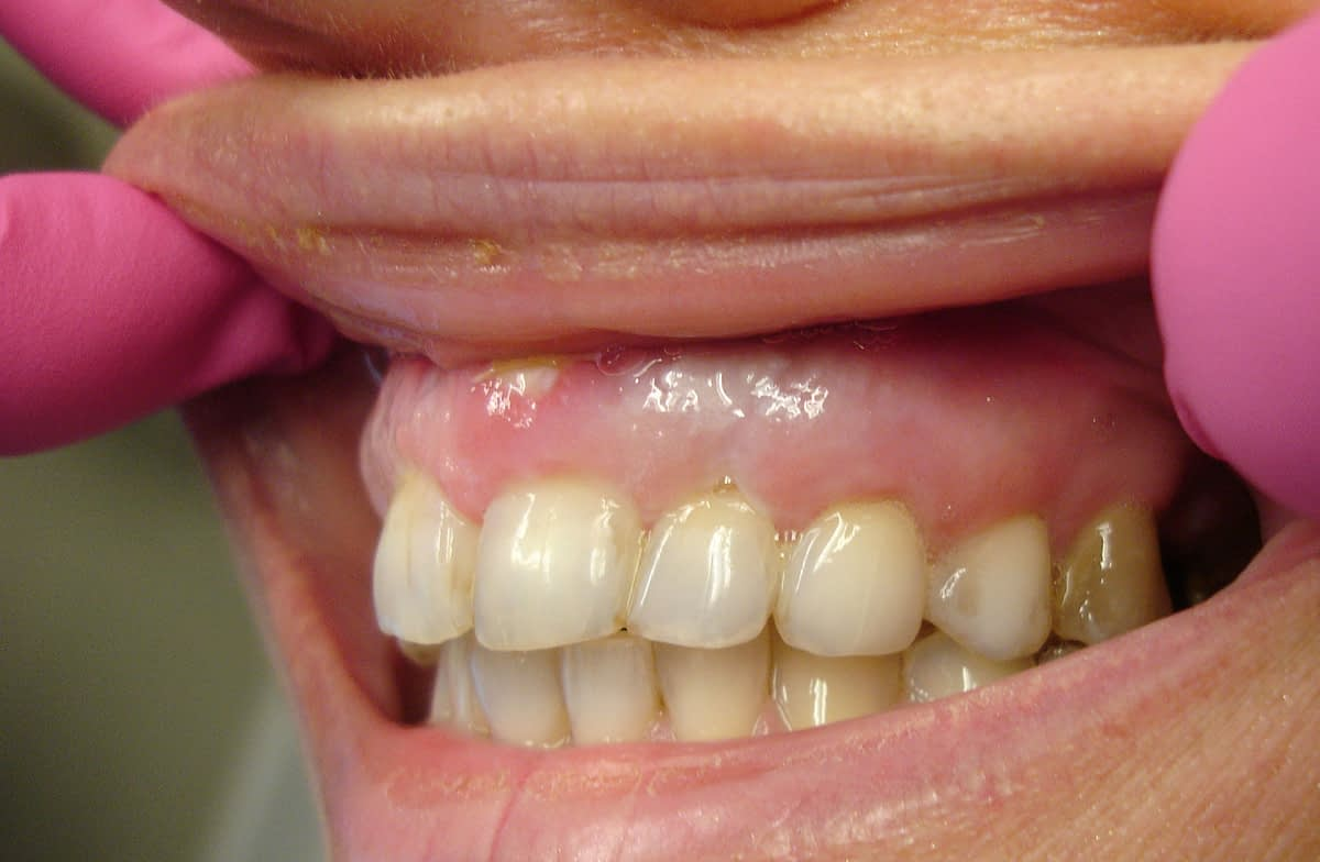 teeth profile 2 week pta