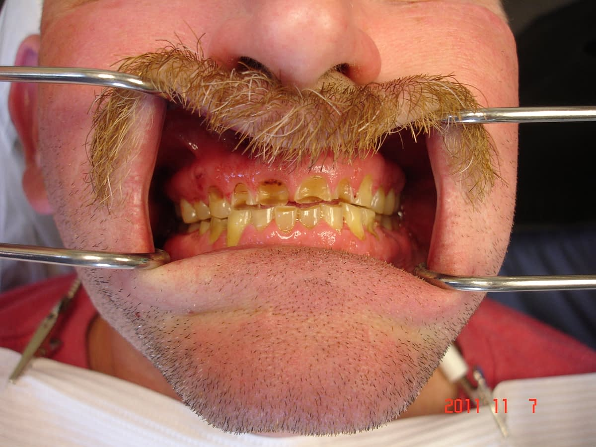man with mustache teeth profile cavities