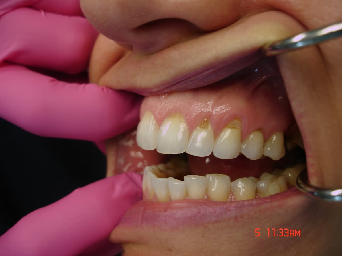 dentist holding mouth open