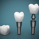 Dental Implants Near Me - How to Find the Best Ones