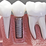 What Dental Implant Packages Can I Expect?