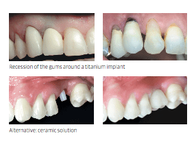 multiple bad teeth profiles