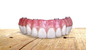 dental implants top