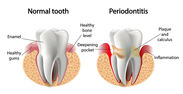 What Type of Procedures Do Periodontists Perform?