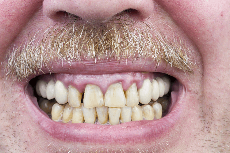 Periodontitis or Periodontal Disease – The Main Concern of Periodontists